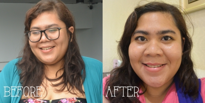 before after oya signature face contour